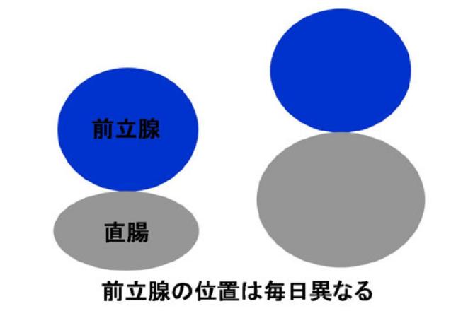 前立腺の位置は毎日異なる
