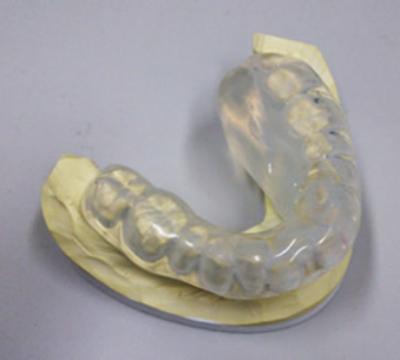 早期の口唇がん、口腔がんに対する密封小線源治療4
