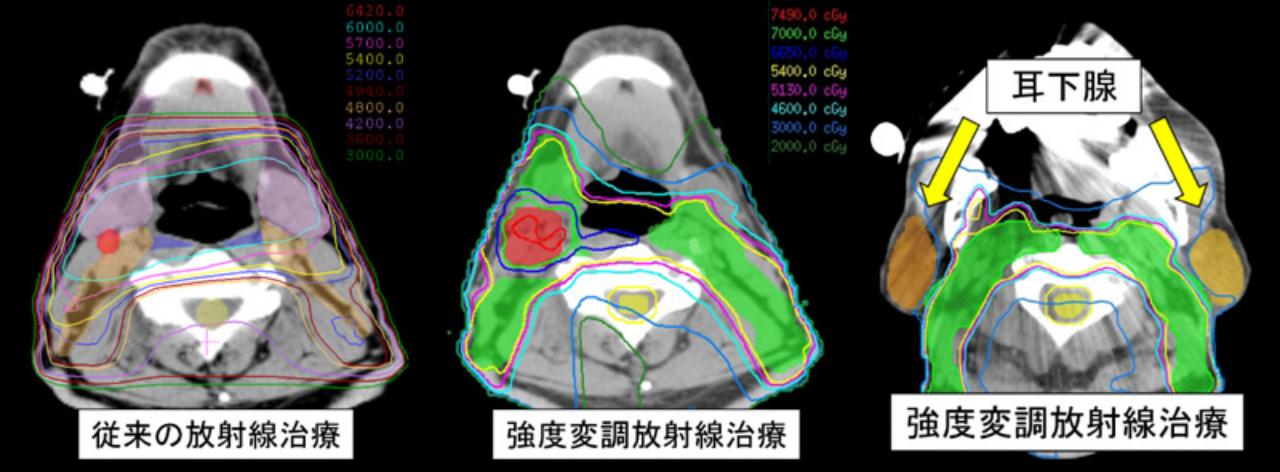 従来の放射線治療 強度変調放射線治療 耳下腺強度変調放射線治療